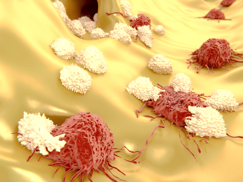 melanoma cells