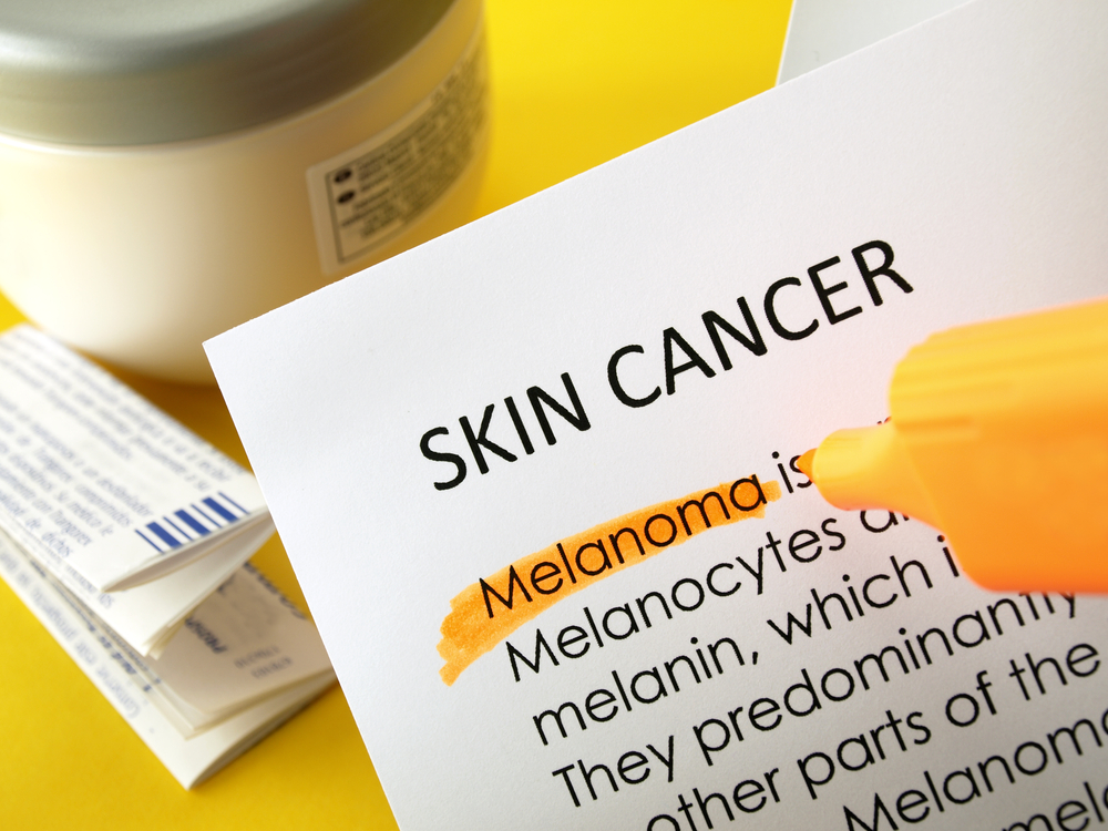 Radiation Combined With Immunotherapy May Provide Optimal Response For Metastatic Melanoma