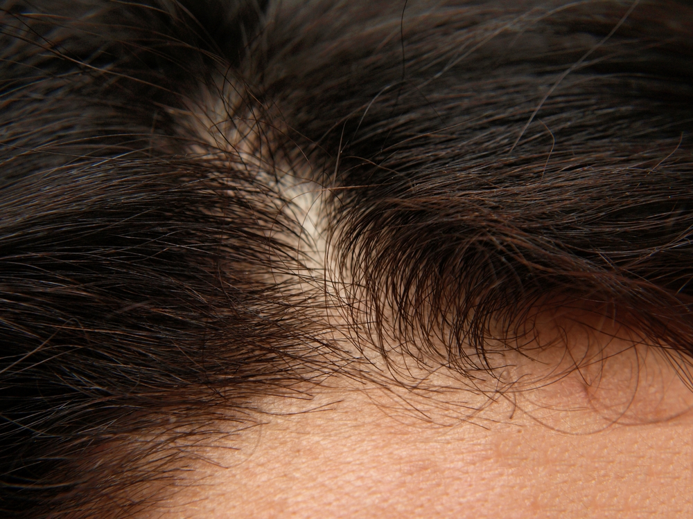 Study Finds Hair Shaft Mirna 221 Levels Can Be Used As