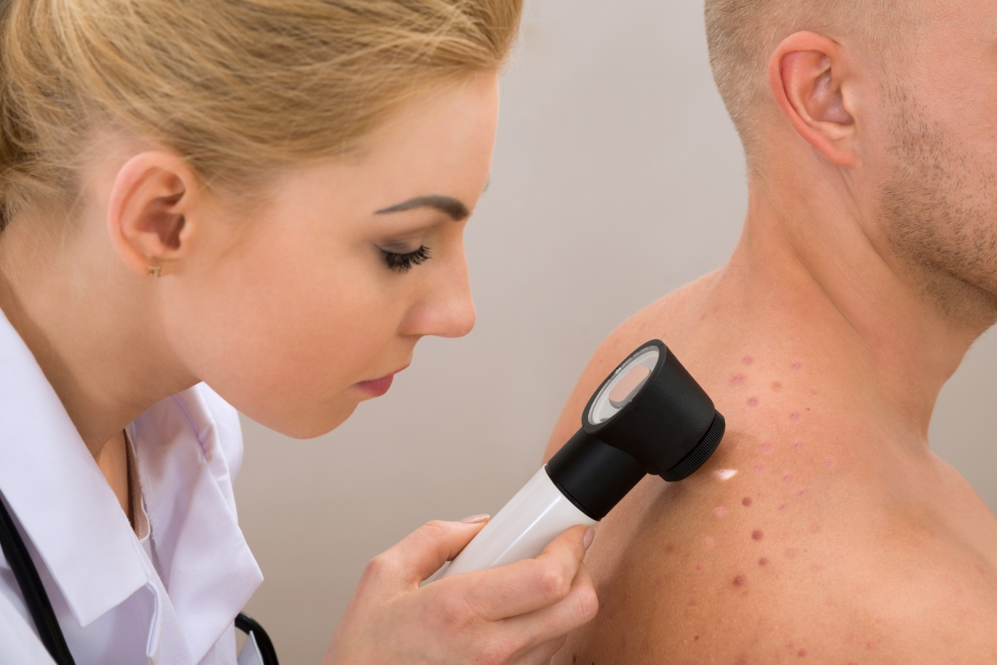 Pensioners in the UK More Likely To Be Diagnosed With Malignant Melanoma