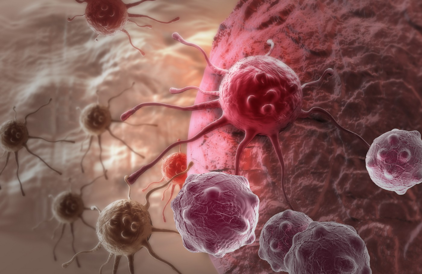 Analyzing Melanoma Tumor Biopsies During Treatment Could Help Predict Patients' Response to Therapy, Study Reports