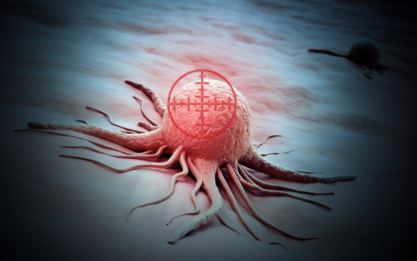 Modified Herpes Virus Increases Survival In Advanced Melanoma Patients
