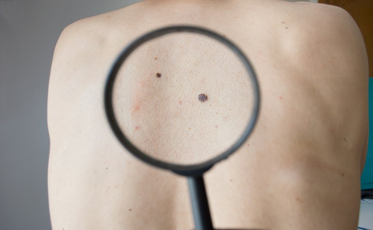 melanoma drug trials