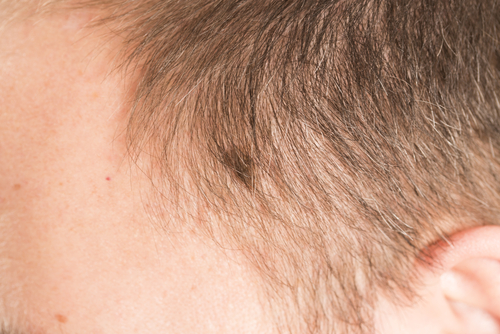 Advanced Head and Neck Melanomas Often Found Where They're Hardest to See
