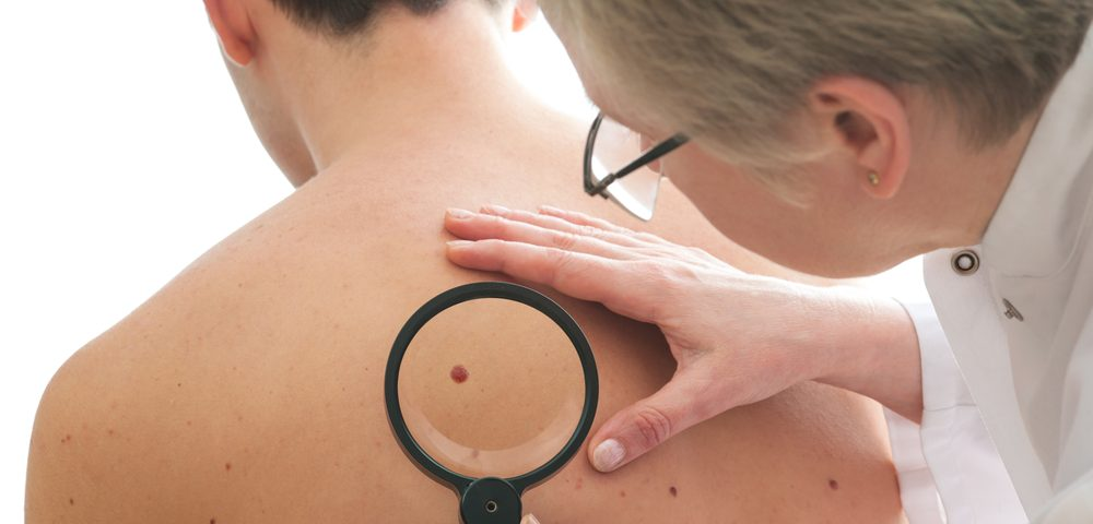 Specialized Melanoma Surveillance Provides Better Outcomes, Lower Costs than Standard of Care, Study Finds