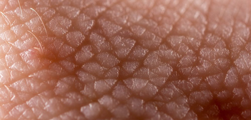 Melanoma Cells' Skin Neighbors Can Stoke Tumor Expansion, Study Shows