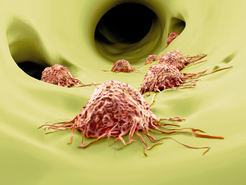 Nanoparticles that carry anticancer drugs